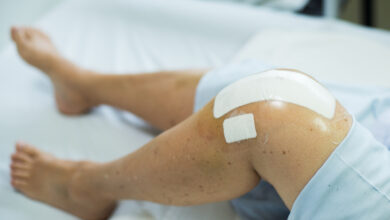 Photo of A Quick Guide to Knee Surgery Recovery